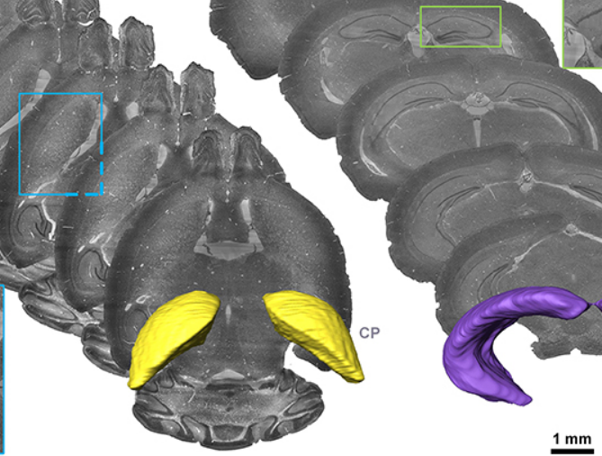 The Brain Atlas and Stereotaxic